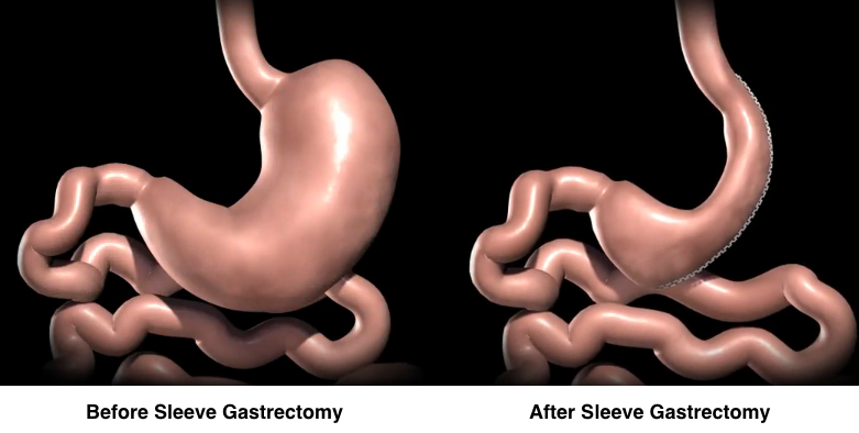 How Does Vertical Sleeve Gastrectomy Surgery Work?